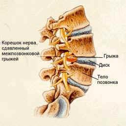 Какой процент тяжелоатлетов имеет остеохондроз