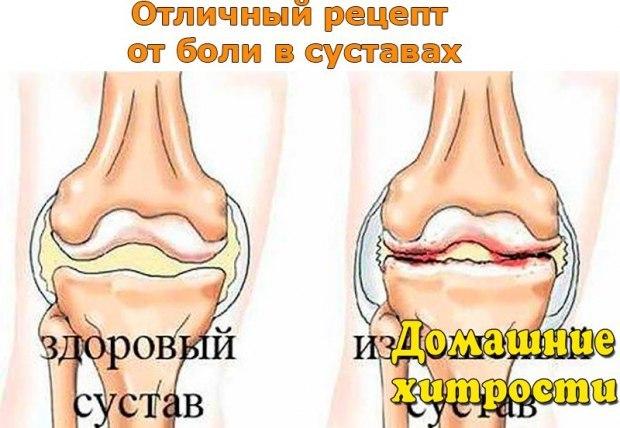 Рецепт от суставы эластин для суставов